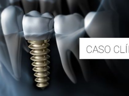 Considerações sobre a utilização dos implantes imediatos carregados em região estética – relato de caso
