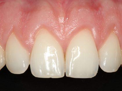Associação entre osso autógeno e material heterógeno como forma de otimização de resultado em enxertia óssea
